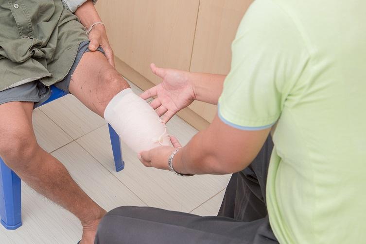 Bandaging amputee