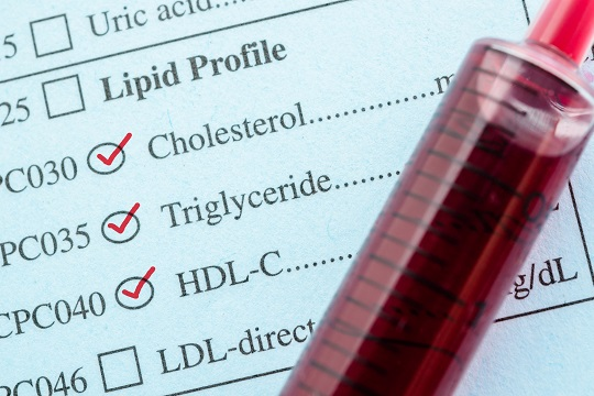 Lipid test checklist and vial of blood